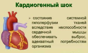 кардиогенный шок, сердце