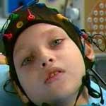 эпилепсия, эпилептический синдром