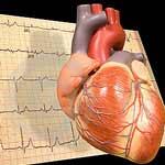 экг, кардиограмма
