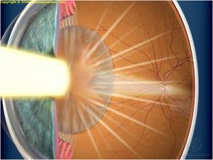 глаза, зрение, катаракта