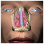 нос, заболевание