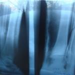 кость, перелом, восстановление