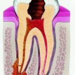 зубы, болевой синдром
