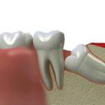 зубы, удаление