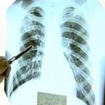 флюорография, боль в груди