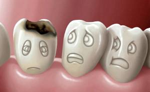 кариес, зубы, стоматолог