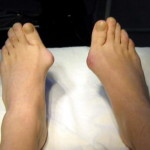 вальгусная деформации стопы, косточки на ногах, искривление