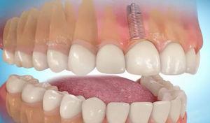 стоматология, имплантация, зубы