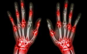 ревматизм, артрит